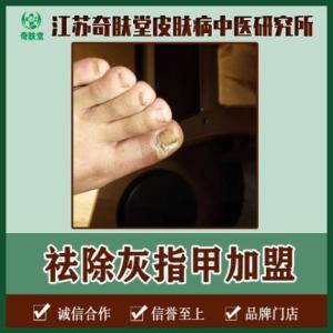 祛除灰指甲加盟